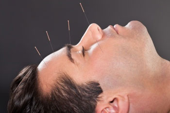accupuncture head